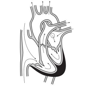 heart-148157_640