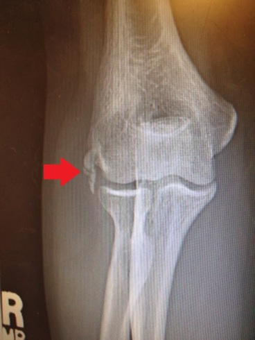 Calcific tendonitis elbow x-ray