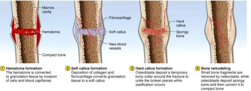McGraw-Hill fracture healing