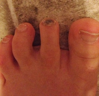 Runner's toe_black toenail